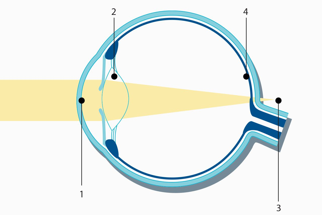 Light rays are refracted by the cornea (1) and the lens (2) in such a way that the focal point (3) is behind the retina (4).