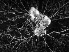 2015: AngioPlex OCT Angiography
